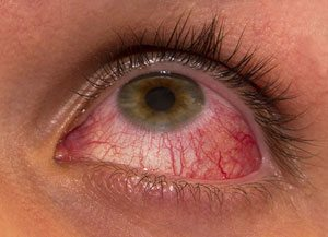 sympathetic_ophthalmia